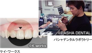 信頼できる歯科技工所と提携