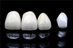 青山通り表参道歯科クリニックの特集・体験レポートはこちらから