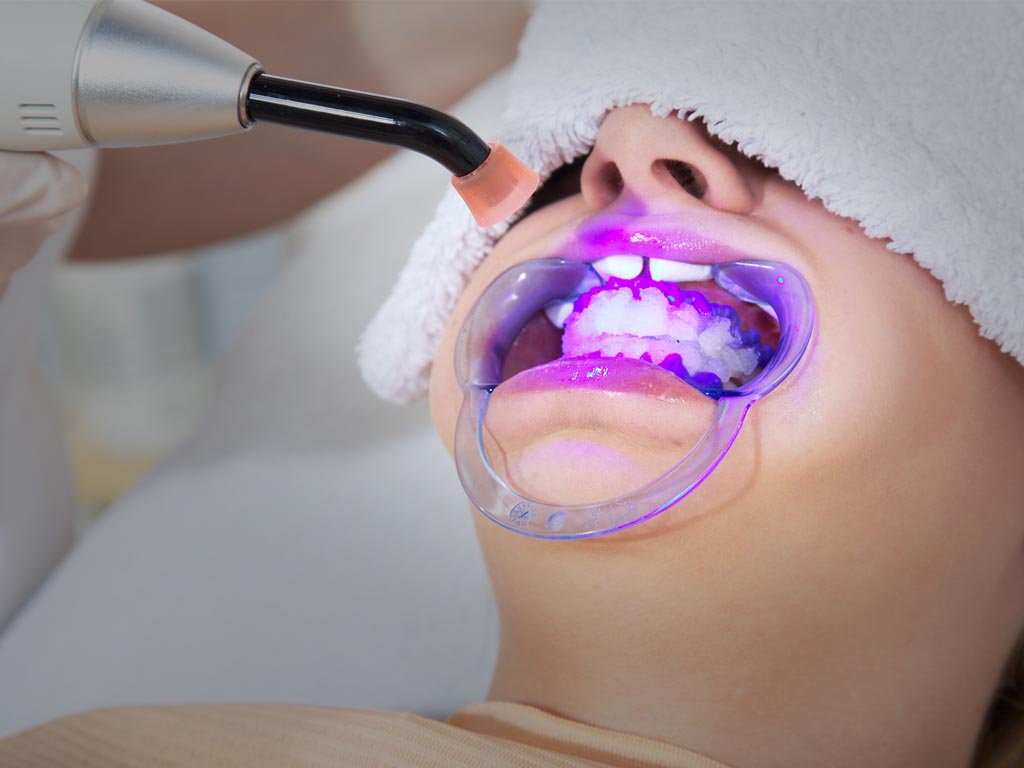 歯を白くしたいについて ©fotoria