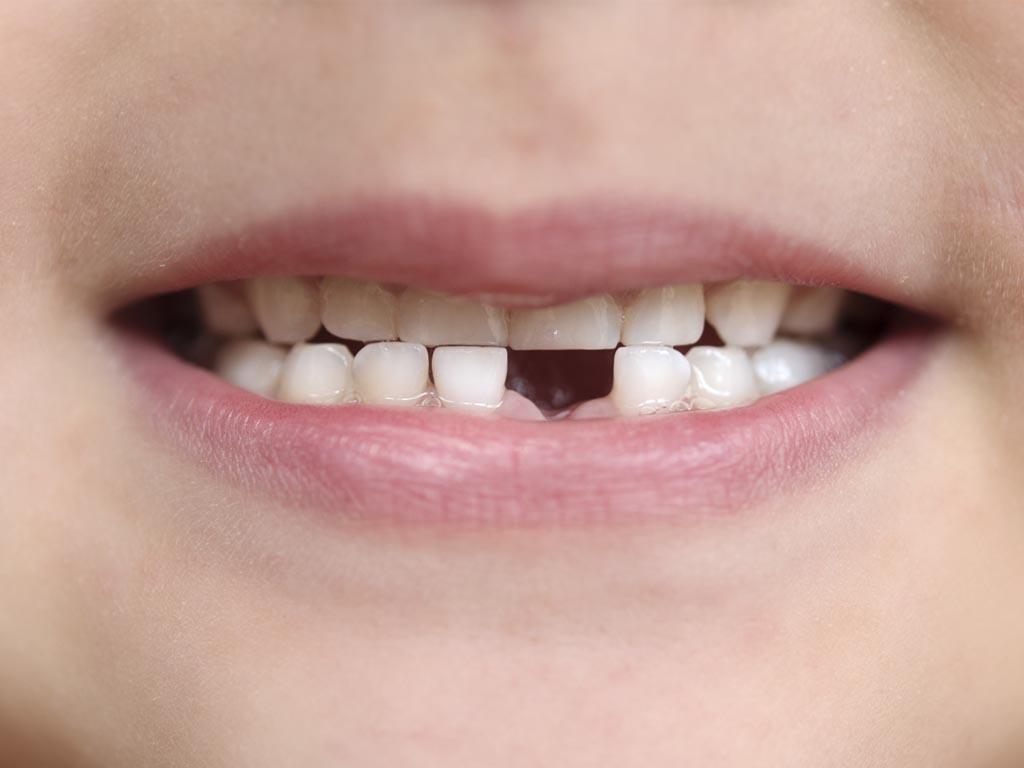 歯が欠けた、歯を失ったら?について ©Fotolia