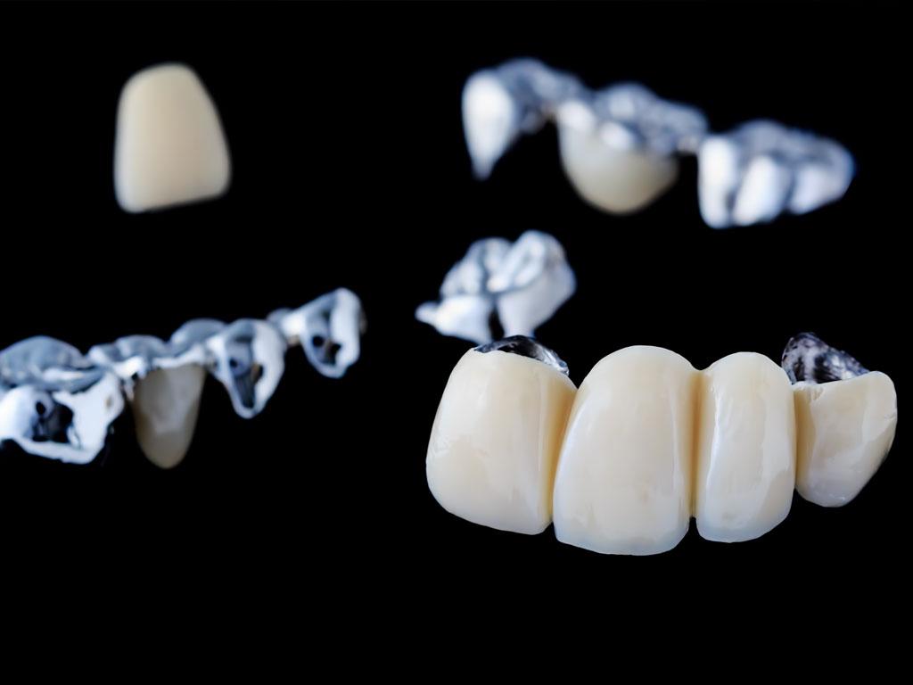 歯の隙間や大きさを変えたいについて ©Fotolia