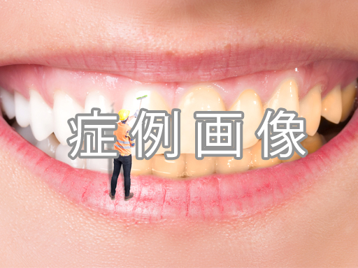 ラミネートベニアの症例(青山外苑東通り歯科クリニック)