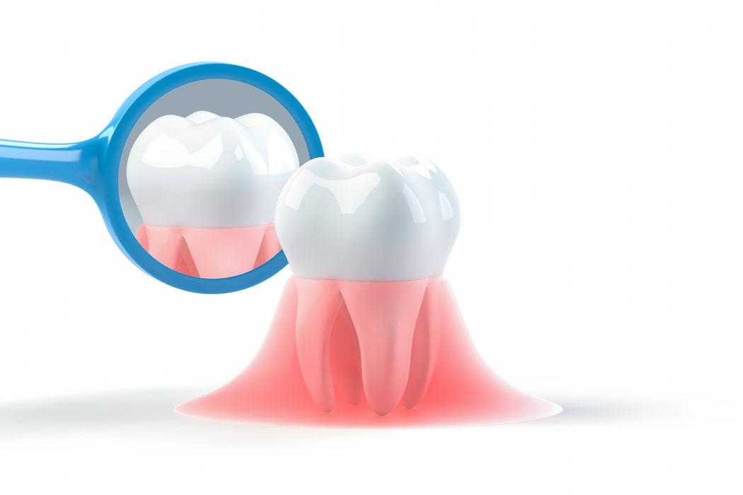 歯茎が痩せる