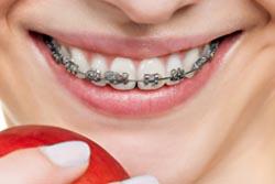 前歯のセラミック矯正