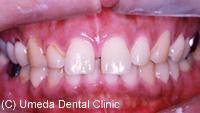 治療前_前歯の隙間(隙を改善)