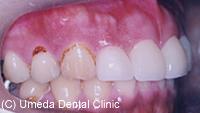 治療後_前歯の隙間(隙を改善)