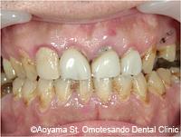 治療後_ジルコニアを使用した症例写真