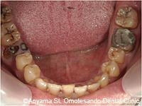 治療前_ジルコニアを使用した症例写真