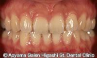治療前_症例写真】ラミネートベニアで前歯6本の歯の色を改善した例