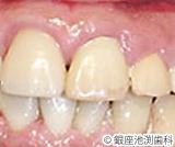 治療後_歯科用レーザーを用いた治療の症例