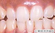 治療前_歯科用レーザーを用いた治療の症例(歯茎のメラニン色素沈着除去)