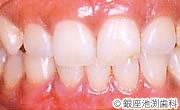 治療後_歯科用レーザーを用いた治療の症例(歯茎のメラニン色素沈着除去)