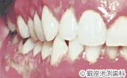 治療前_歯科用レーザーを用いた治療の症例(口内炎・粘膜の炎症)