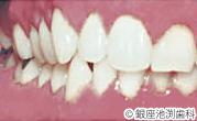 治療後_歯科用レーザーを用いた治療の症例(口内炎・粘膜の炎症)