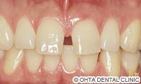 治療前_歯のスキ間がある場合