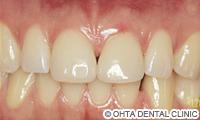 治療後_歯のスキ間がある場合