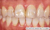 治療前_歯の表面が汚い場合(虫歯治療跡が凸凹している)