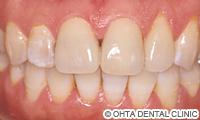 治療後_歯の表面が汚い場合(虫歯治療跡が凸凹している)