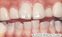 治療後_テトラサイクリン着色歯が重症の場合(下顎の歯はホワイトニング