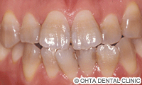 治療前_テトラサイクリン着色歯が重症の場合