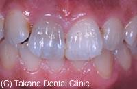 治療前_変色や着色した歯を白くする
