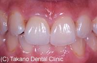 治療後_変色や着色した歯を白くする
