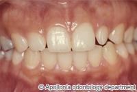 治療前_矮小歯をラミネートベニアで治療したケース