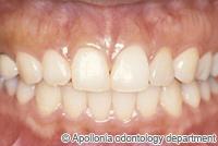 治療後_矮小歯をラミネートベニアで治療したケース