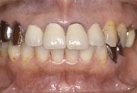 治療前_歯に違和感を感じていた69歳の女性のケース ©Apollonia odictoligy department