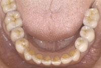 治療後_歯に違和感を感じていた69歳の女性のケース ©Apollonia odictoligy department