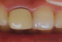 お口の中の検査とカウンセリング