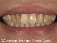 治療前_症例1:前歯6歯全部オールセラミックスの症例写真