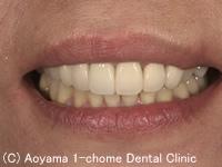 治療後_症例1:前歯6歯全部オールセラミックスの症例写真