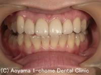 治療後_症例2:前歯6歯全部オールセラミックスの症例写真
