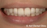 治療後_症例1:前歯4歯ジルコニアの症例写真