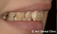 治療前_症例1:前歯4歯ジルコニアの症例写真
