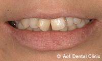 治療前_症例2:前歯6歯ジルコニアの症例写真