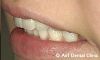 治療後_症例2:前歯6歯ジルコニアの症例写真