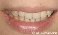 治療前_症例1:6歯ジルコニアの症例写真