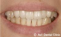 治療後_症例1:6歯ジルコニアの症例写真