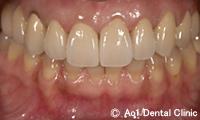 治療後_症例2:5歯ジルコニアの症例写真