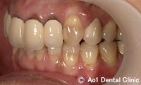 治療前_症例2:5歯ジルコニアの症例写真