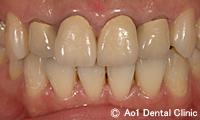 治療前_症例3:4歯ジルコニアの症例写真