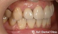 治療後_症例3:4歯ジルコニアの症例写真