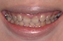 治療前_症例1、歯の重度変色と歯肉ラインのバランスを整えるため、歯肉整形後、ラミネートベニア治療を行った症例