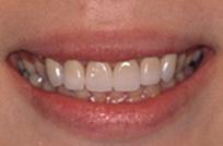 治療後_症例1、歯の重度変色と歯肉ラインのバランスを整えるため、歯肉整形後、ラミネートベニア治療を行った症例