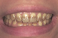 治療前_症例1、重度の変色歯をホームホワイトニングで改善