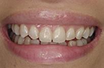 治療後_症例1、重度の変色歯をホームホワイトニングで改善