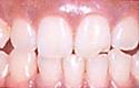 治療前_歯科用レーザーで、歯肉やお口全体を、健康にきれいに回復します