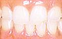 治療後_歯科用レーザーで、歯肉やお口全体を、健康にきれいに回復します